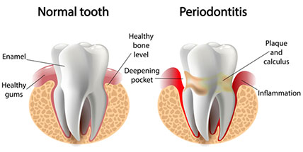 Periodontitis is a cause of sensitive teeth